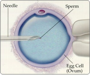 Intracytoplasmic Sperm Injection diagram