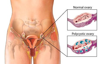 picture of pcos ovary